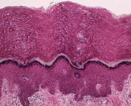 Scoperto l'Interstizio, spiega il meccanismo d'azione dell'agopuntura